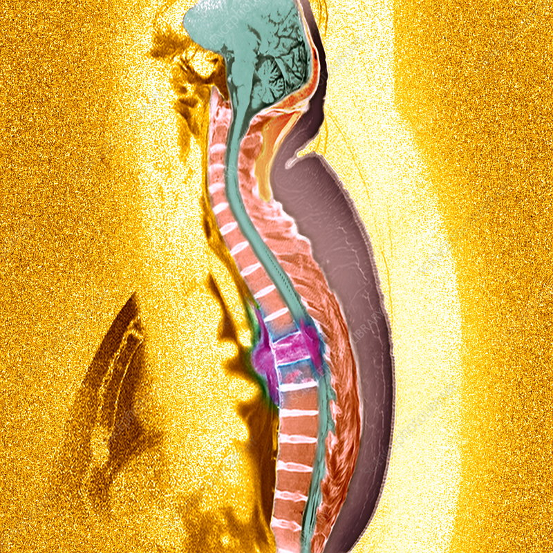 Secondary Bone Cancer Prognosis picture