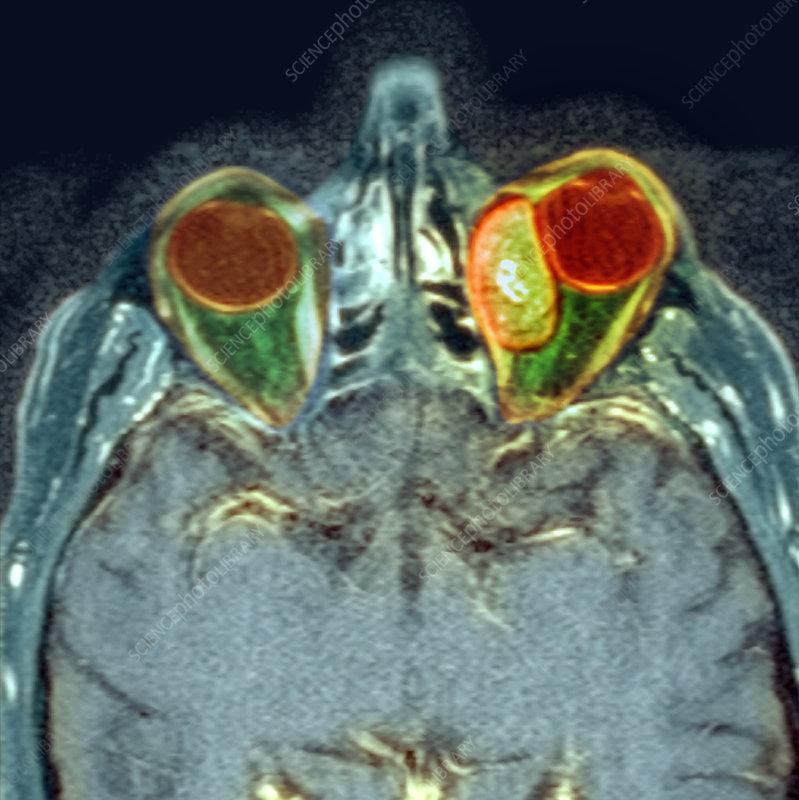Secondary cancer, MRI