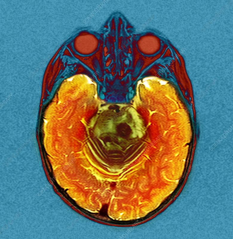 Brain cancer, MRI scan