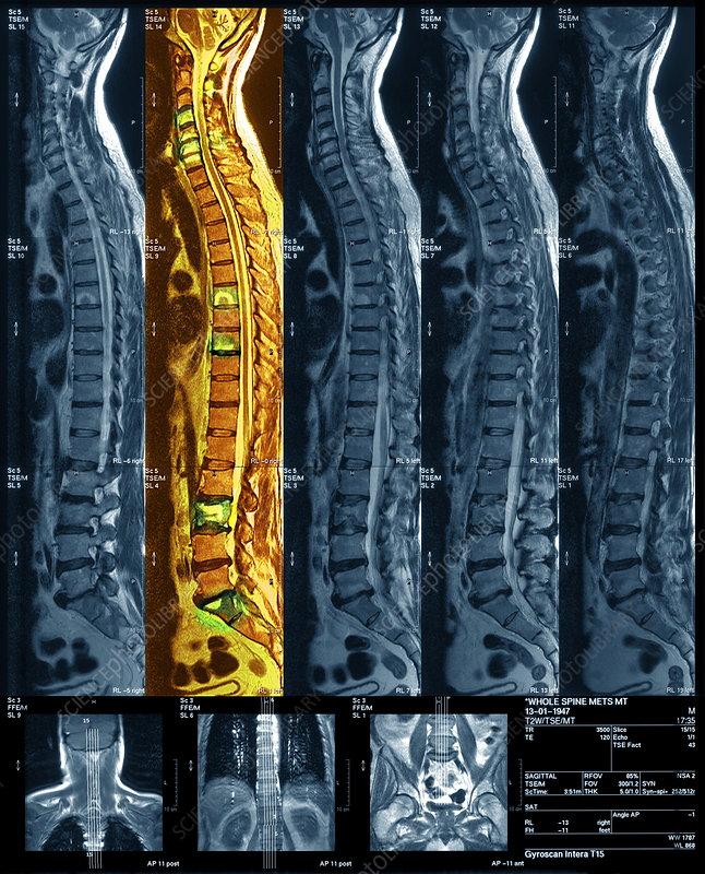 Bone cancer, MRI scan