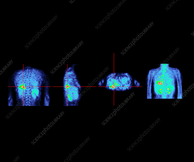Caption: Metastatic lung cancer. Coloured positron eletron tomography (PET)
