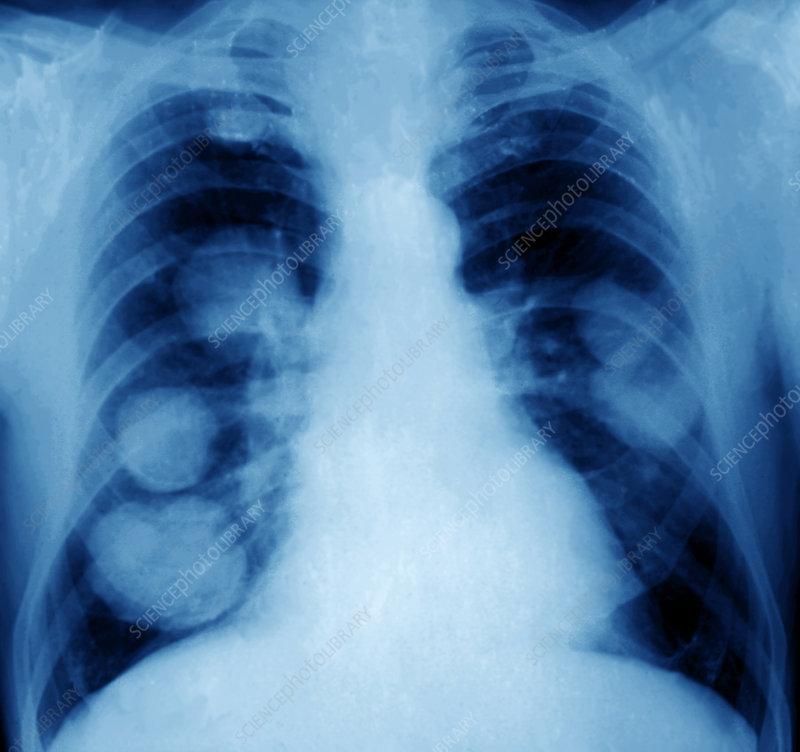 Рак поджелудочной железы причины симптомы стадии лечение