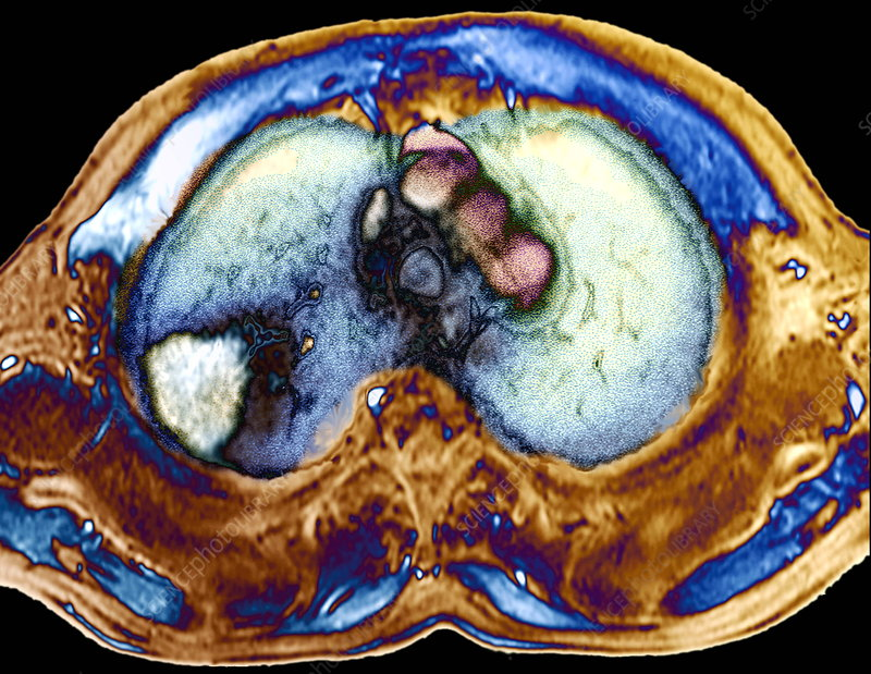 Lung cancer, PET scan