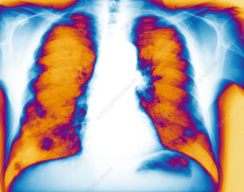 Secondary lung cancer, X-ray