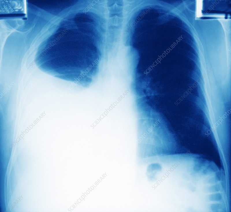 Lung cancer and pleurisy, X-ray