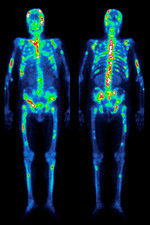 Secondary bone cancer, gamma scan