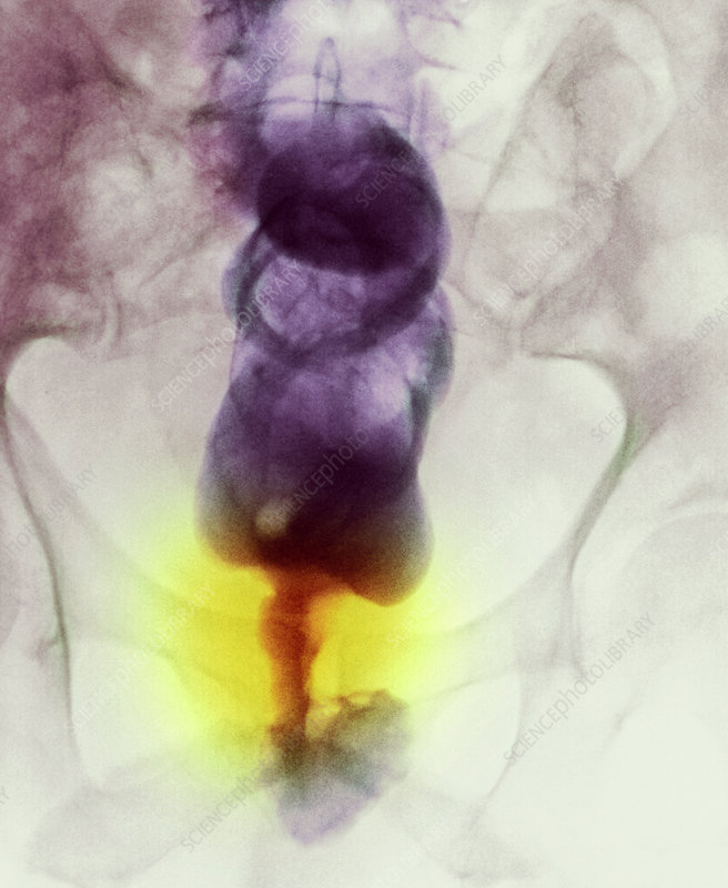 Narrowed rectum, X-ray