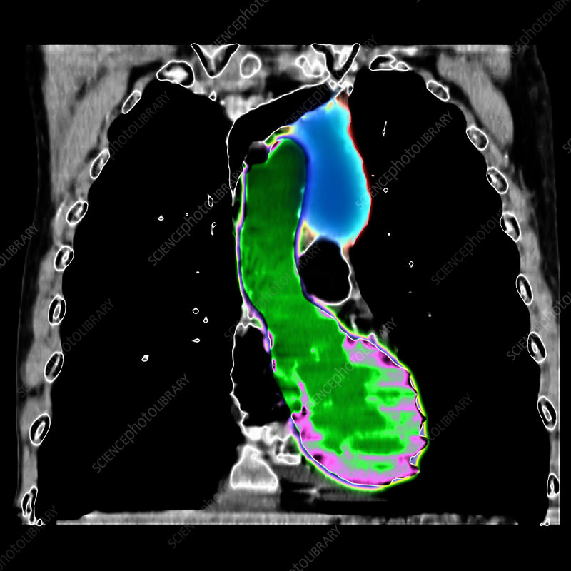 CT reconstruction of chest