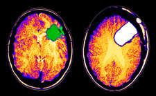 CT scan of brain glioma and tumor removal
