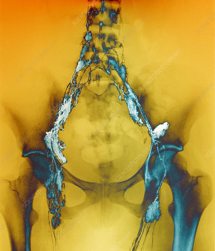 Lymphoma, X-ray