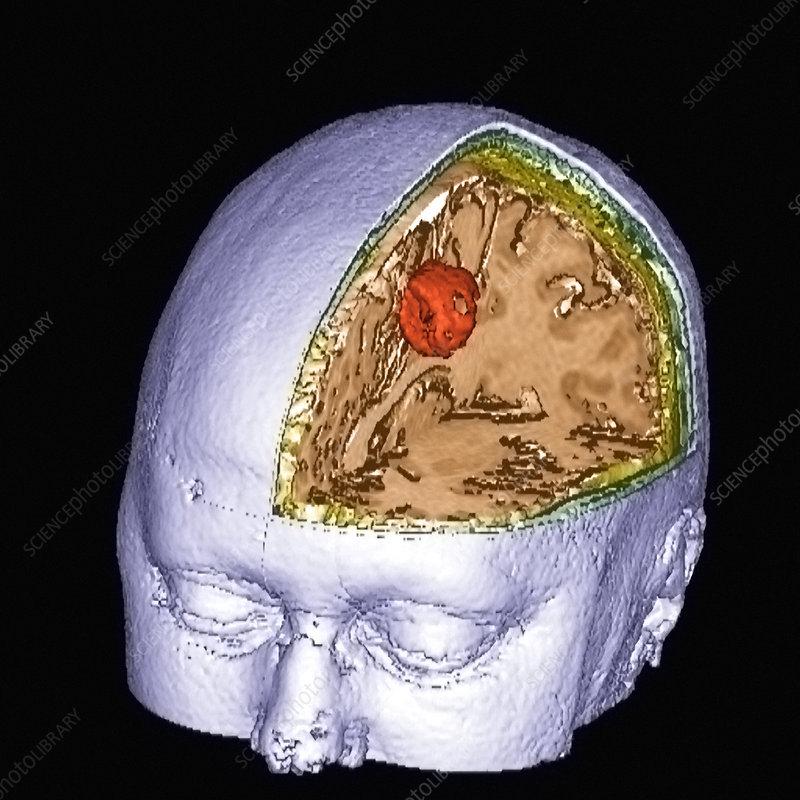 Brain tumour, 3-D MRI scan