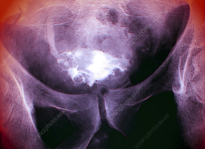 Bladder cancer, X-ray