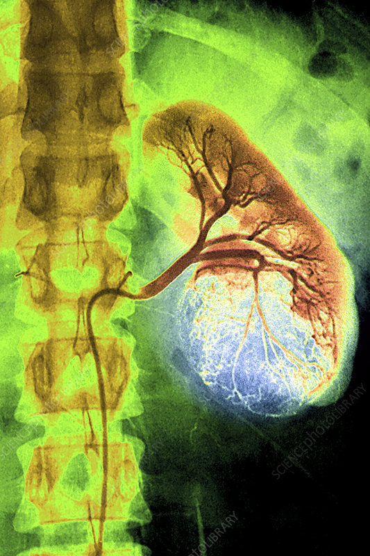 Kidney cancer, X-ray