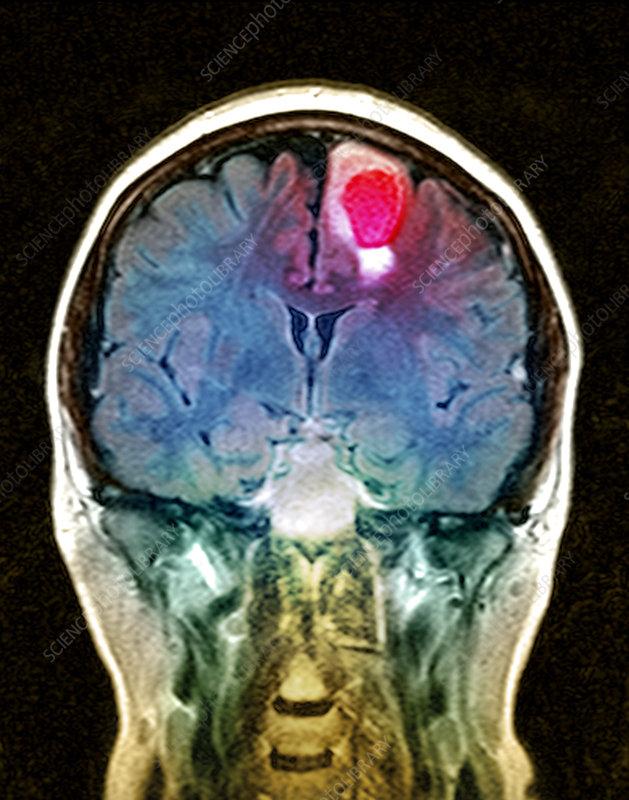 Brain tumour, MRI scan