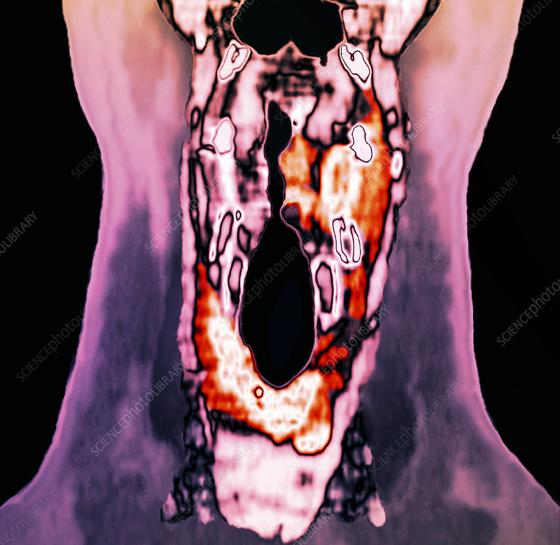 Cancer of the larynx, CT scan