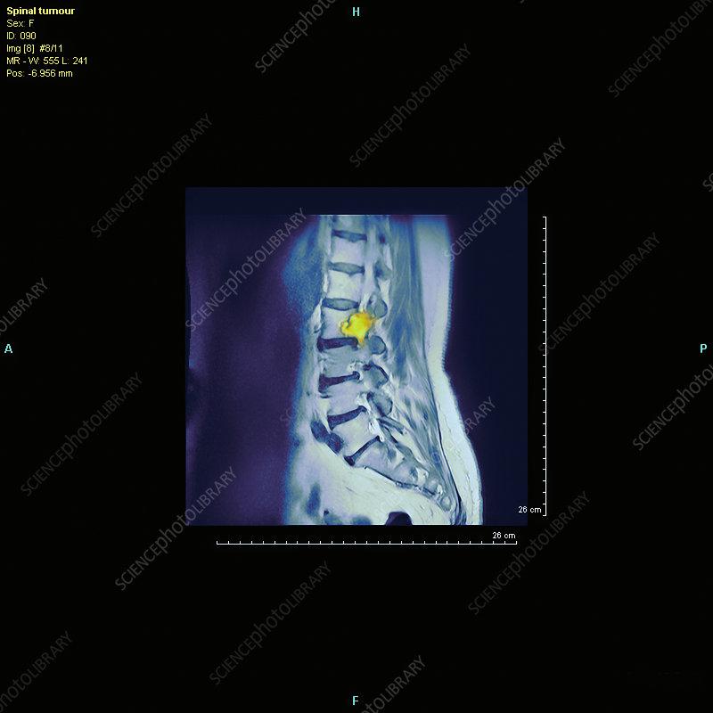 Spine tumour, MRI scan