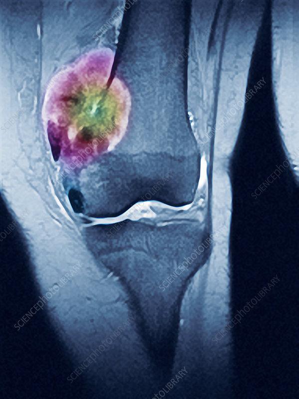 Bone tumour, MRI scan