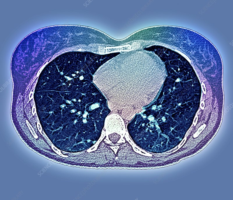 Secondary lung cancer, CT scan