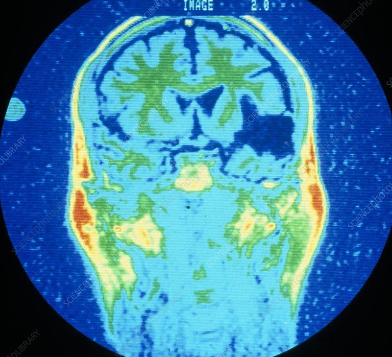 False-col NMR image showing cerebral infarction