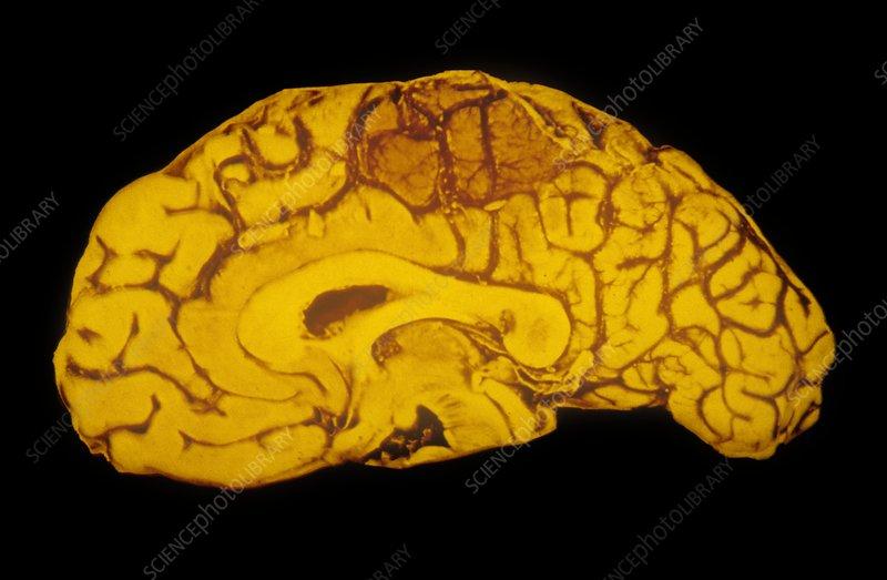 Specimen human brain showing haemorrhage