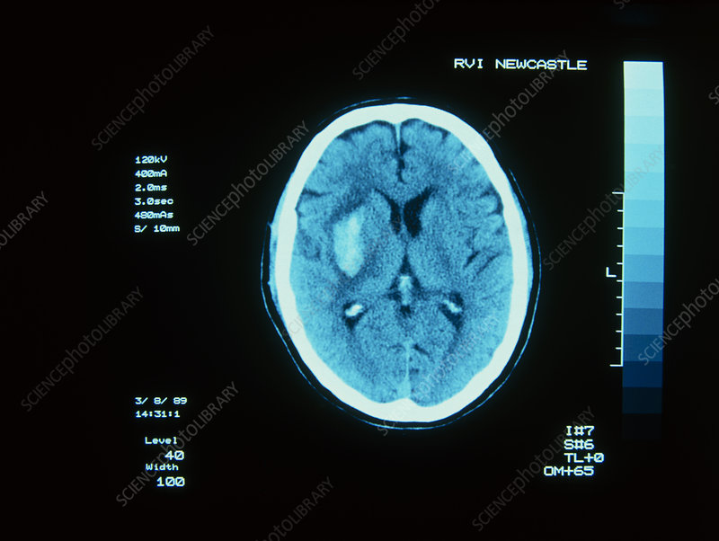 CT scan of cerebral (intracranial) haemorrhage
