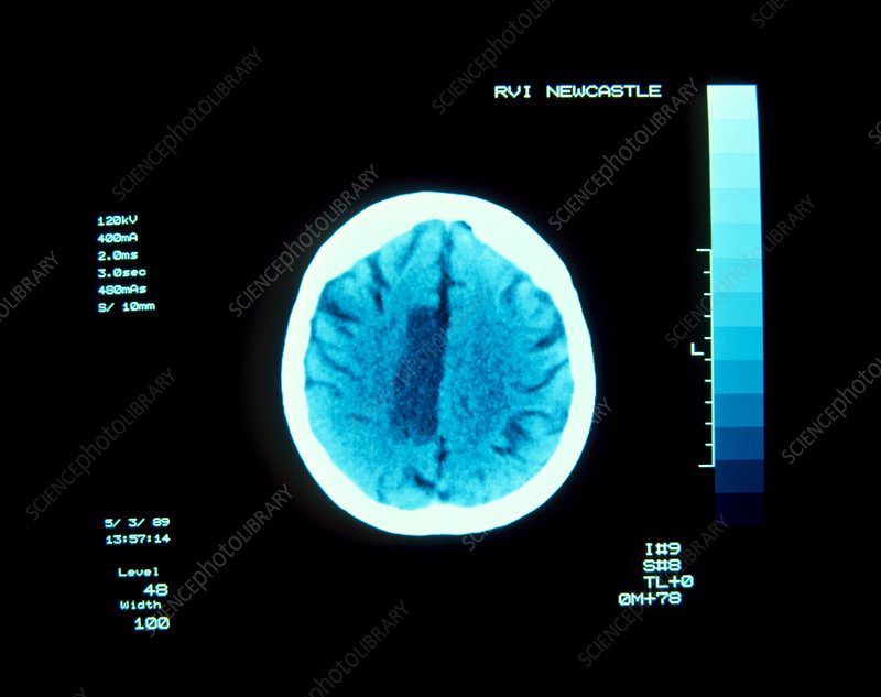 CT brain scan showing cerebral infarction - stroke