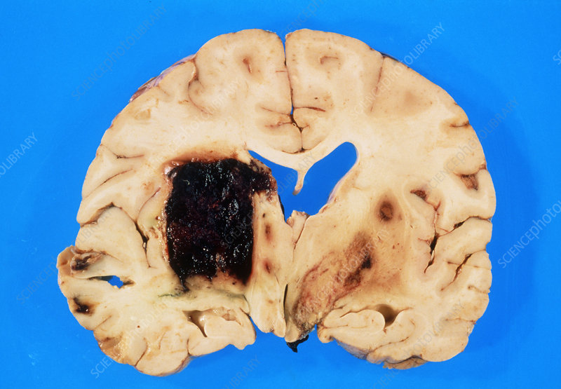 Section of brain showing intracerebral haemorrhage
