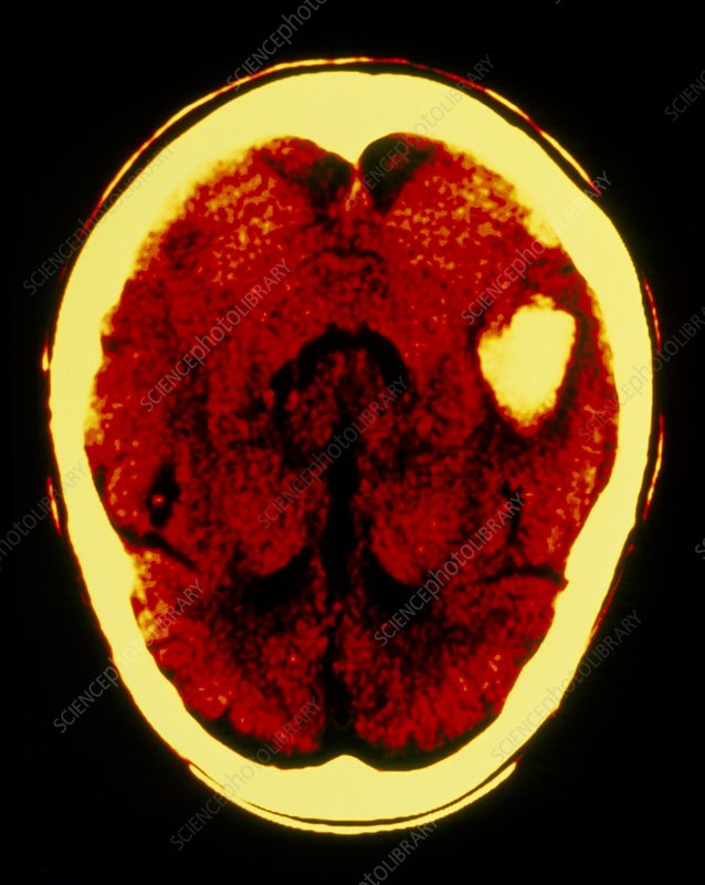 F/col CT scan of brain haemorrhage (post temporal)