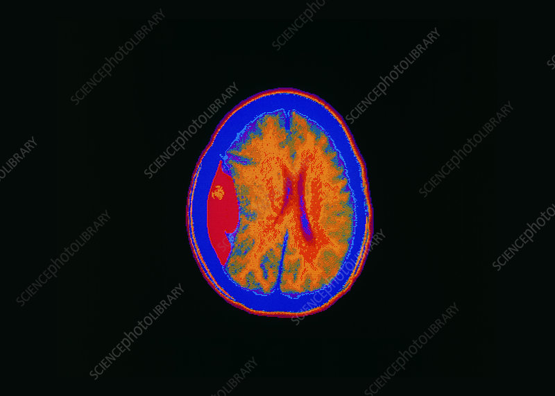 Coloured CT scan showing a brain haemorrhage