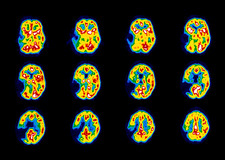 Colour PET scans of the brain of a stroke patient