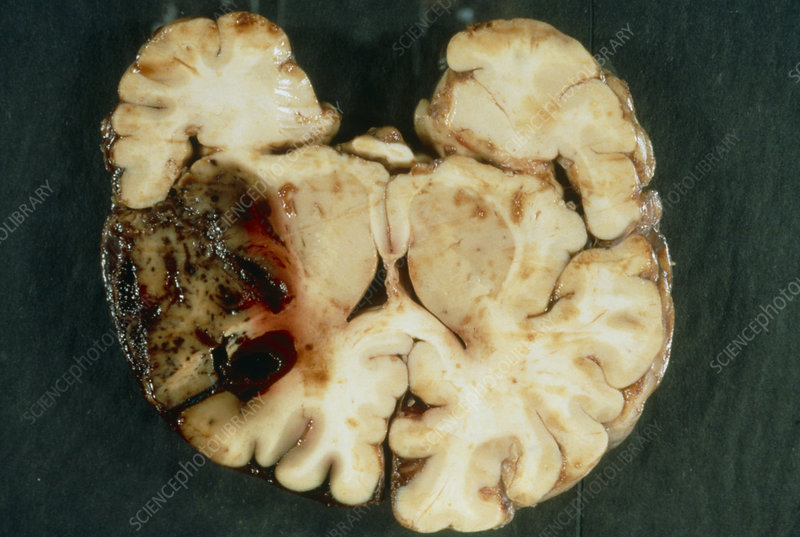 Section of brain with intracerebral haemorrhage