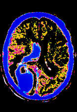 Coloured CT scan of the brain showing a stroke
