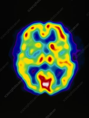 Coloured PET scan of the brain of a stroke patient