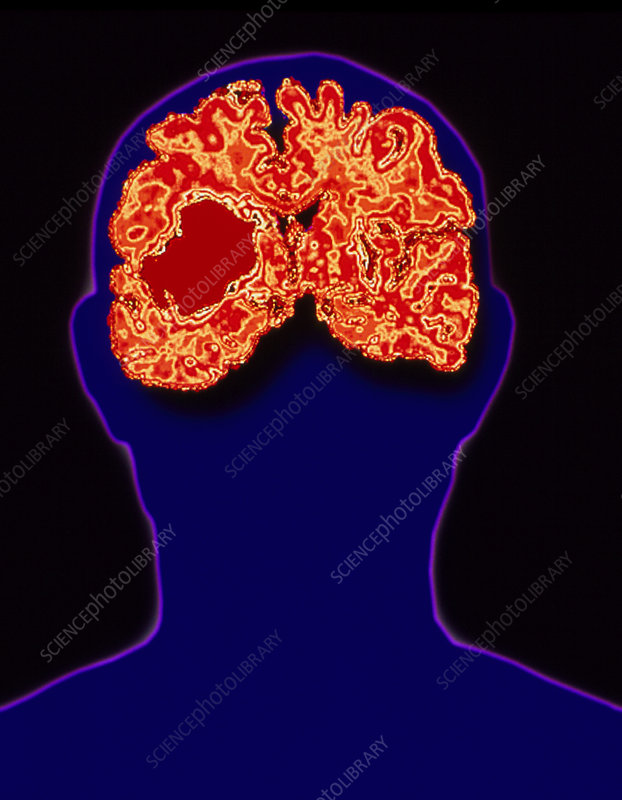 Silhouette of head showing brain haemorrhage