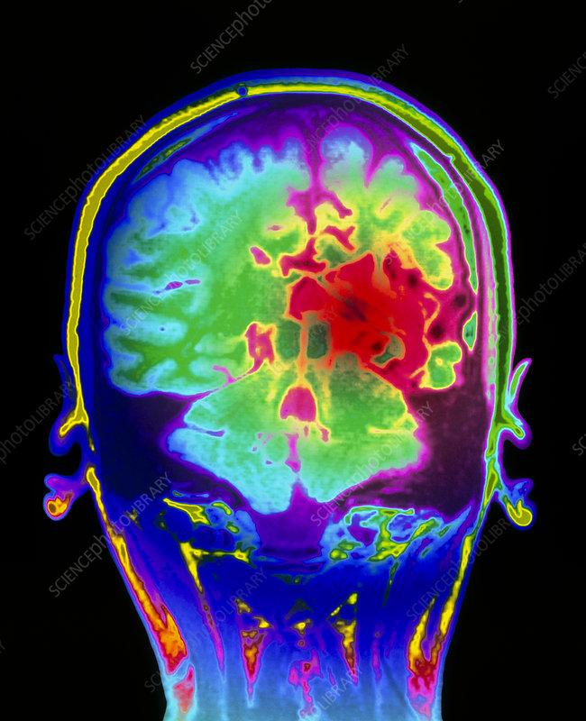 Colour MRI brain scan of arteriovenous malfunction