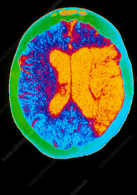 Coloured CT scan of a brain haemorrhage