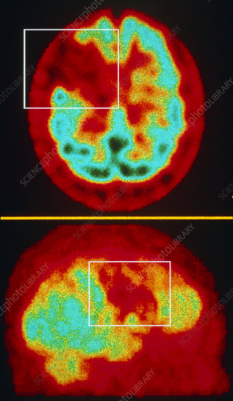 Brain haemorrhage gamma scans