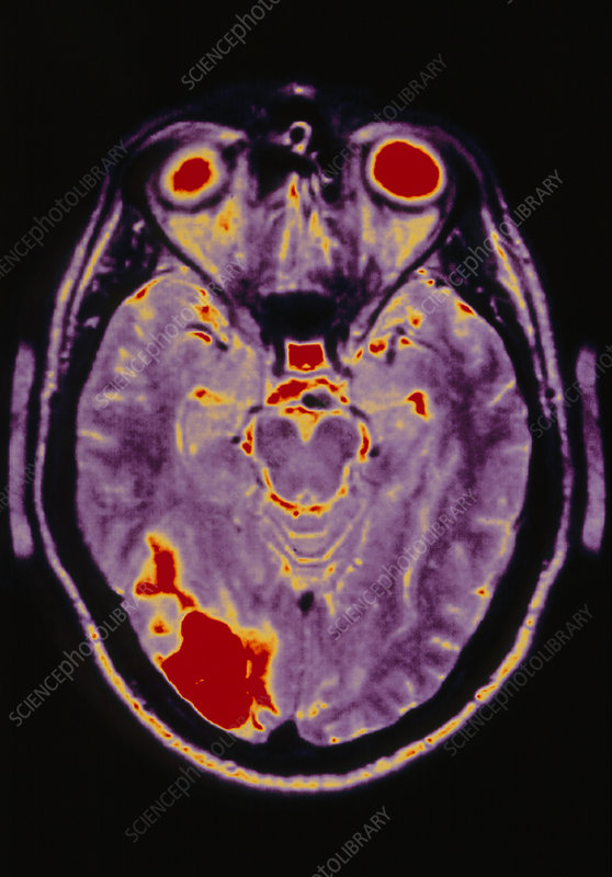Brain after stroke