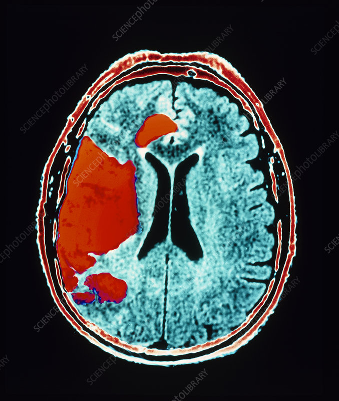 Stroke, CT scan