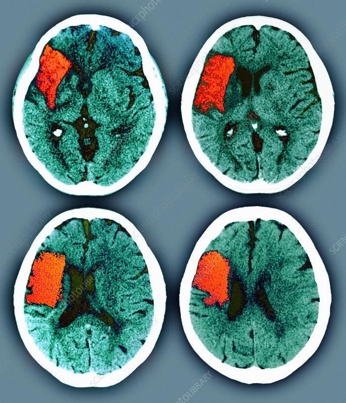 Stroke, CT scans