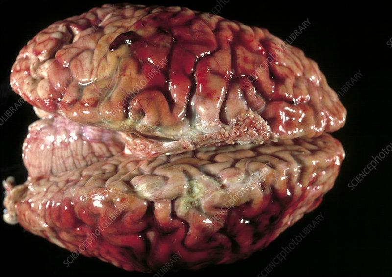 Bloody brain membranes