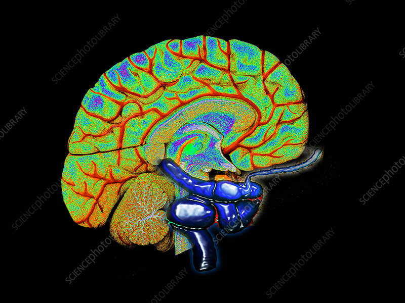 3D cerebral angiogram of aneurysm