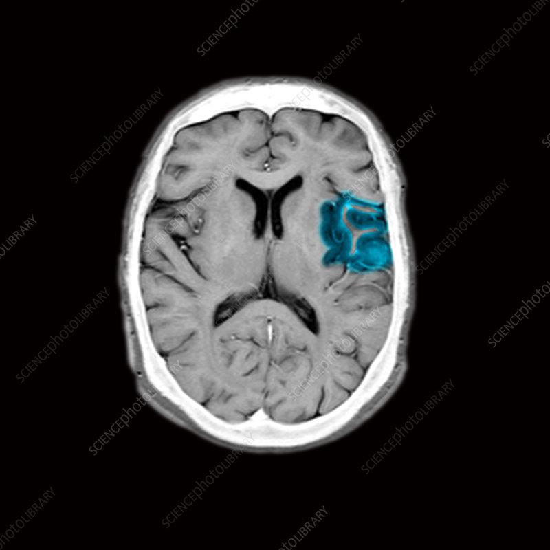 MRI of brain with acute stroke