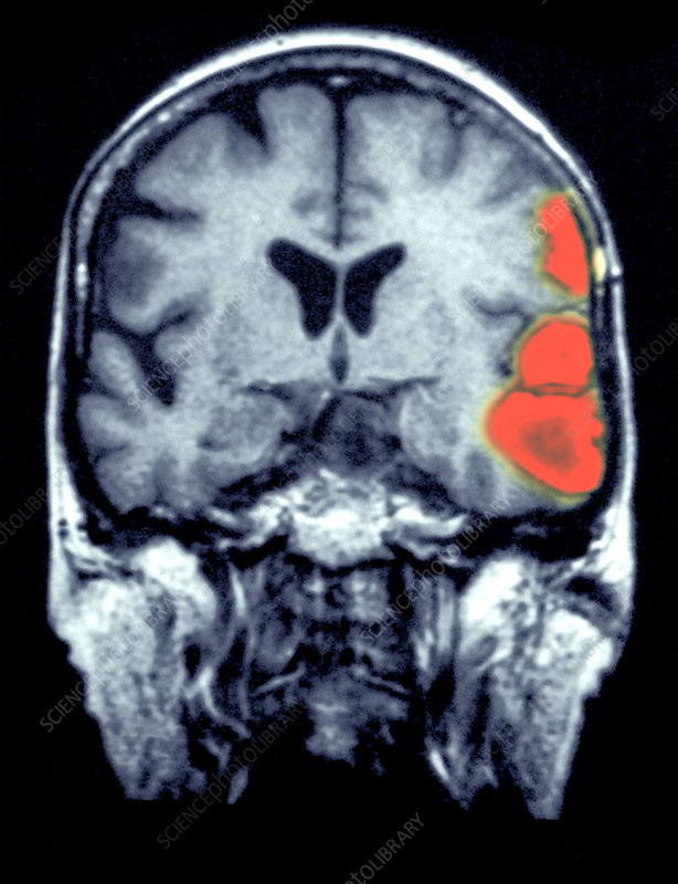 MRI Scan of a Brain Hemorrhage