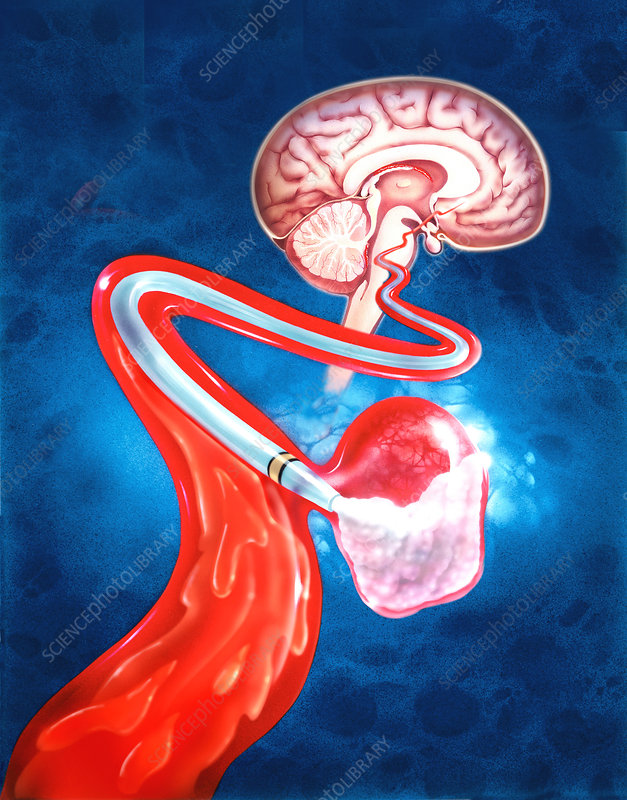 Illustration of brain aneurysm therapy