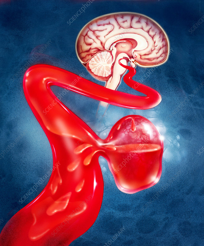 Illustration of a brain aneurysm