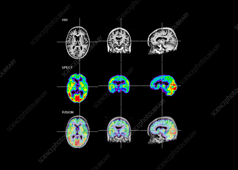 Stroke, SPECT and MRI scans