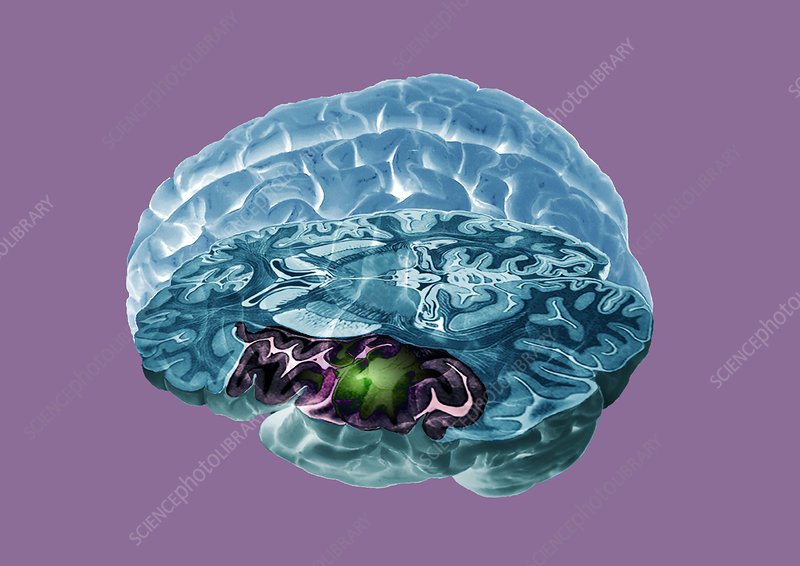 Stroke, MRI scan