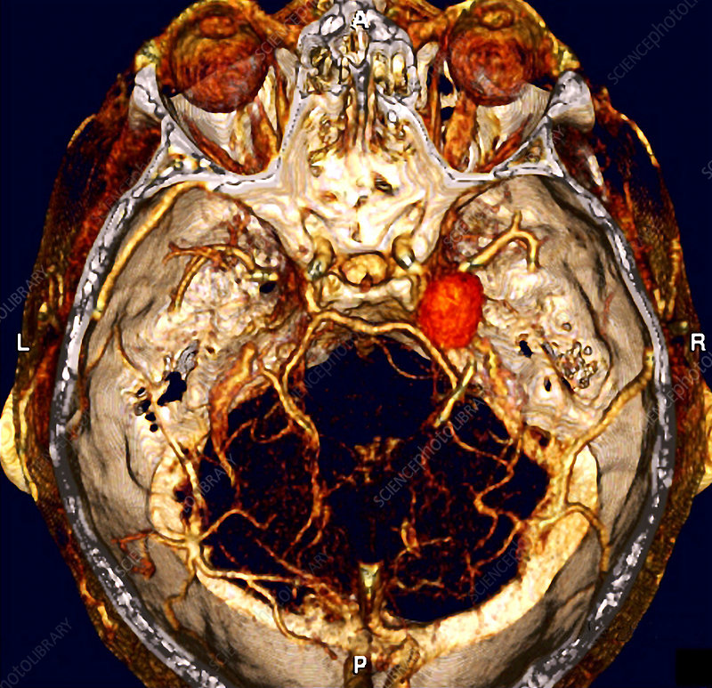 Cerebral aneurysm, CT scan