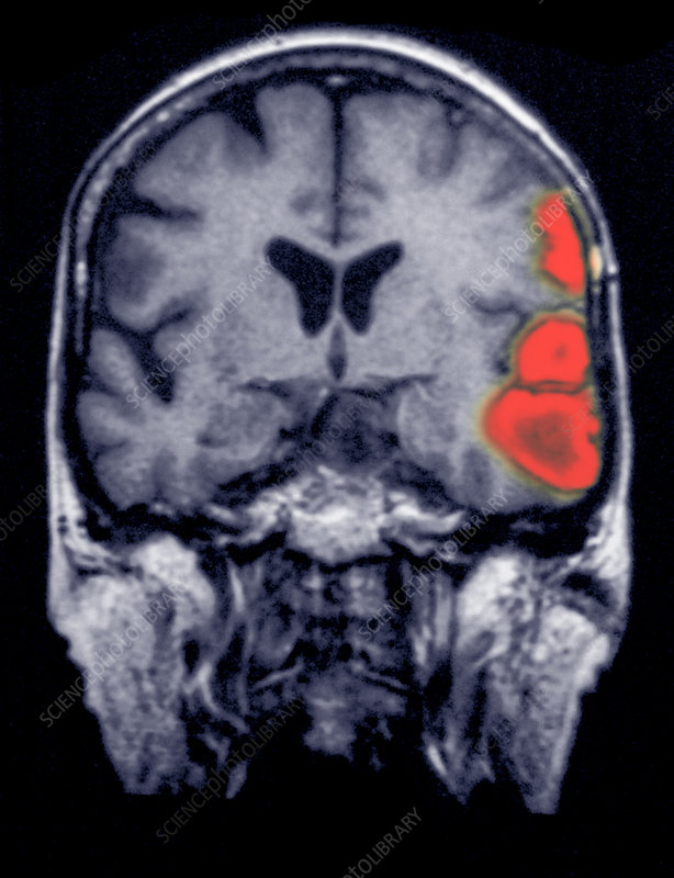 MRI of brain showing a stroke